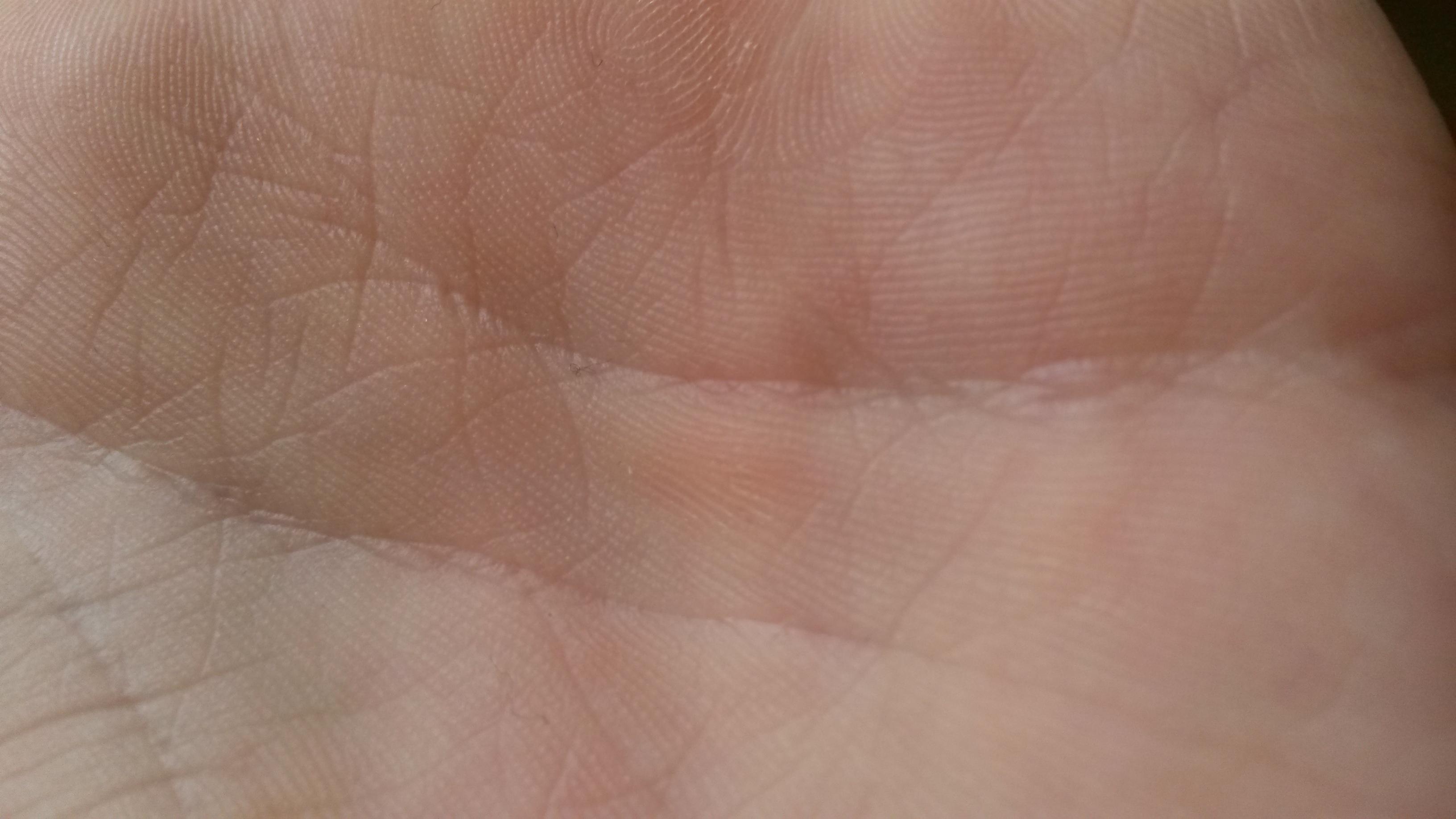 fleck auf der hand? was ist das denn? (haut)