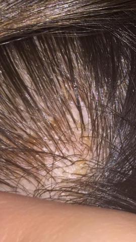 Flecken auf dem Kopf (juckt,brennt)? (Gesundheit