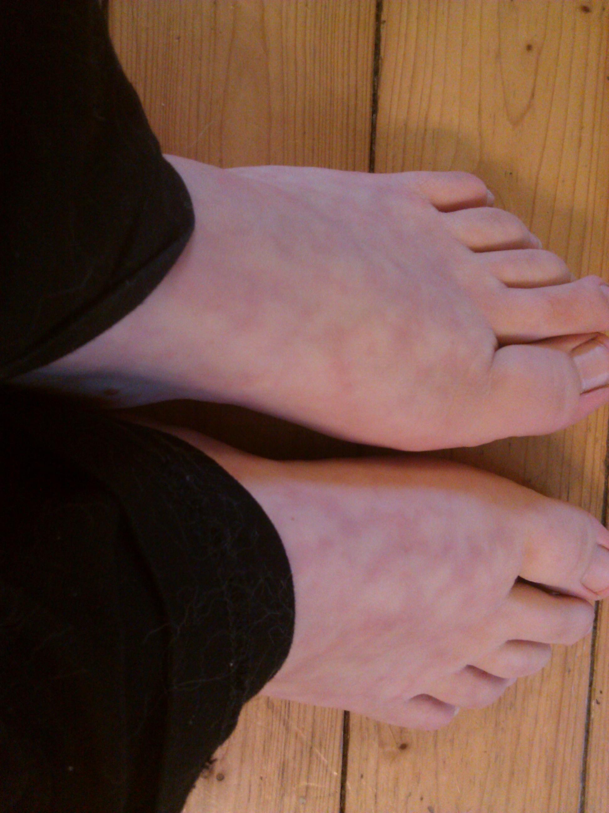 Beinen