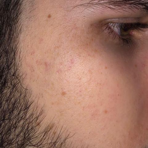 Fleck Fleck Fleck - (Gesundheit, Gesundheit und Medizin, Gesicht)
