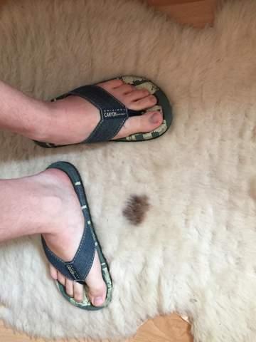 Flip Flops im Sommer (J/17)?