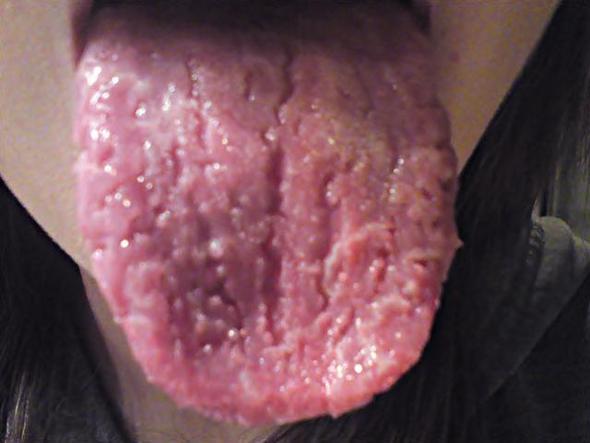 Meine Zunge! - (Gesundheit, Arzt, Mund)