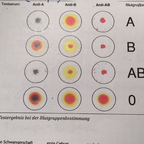 Hier das Bild  - (Biologie, Blut, Unterricht)