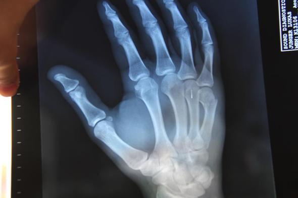 Fraktur 5ter Mittelhandknochen Im Ausland Medizin Hand Finger