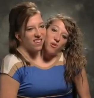 Die Zwillinge - (Körper, Zwillinge)