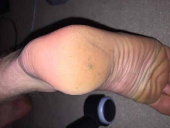 Siehe Ferse  - (Körper, Füße, entfernen)