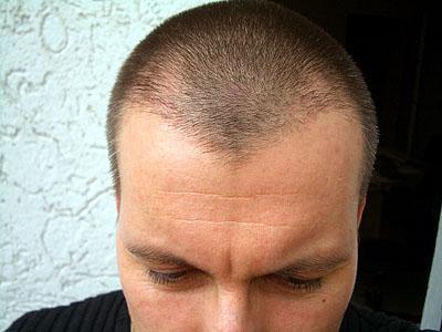 Frisur Kurz Vor Glatze Wetten Haarlange Wetteinsatz