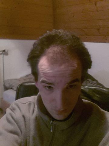 Frisur Mit Geheimratsecken Und Kahler Stelle Am Hinterkopf Haare