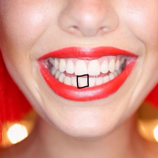 Füllung am Zahn griege eine zahnspange tut das nicht weh