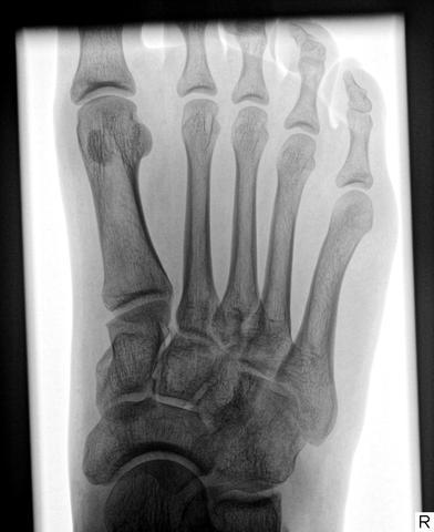 Röntgenbild - (Gesundheit, Füße, Bänder überdehnt)