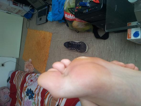 Fuß beule - (Arzt, Füße, orthopäde)