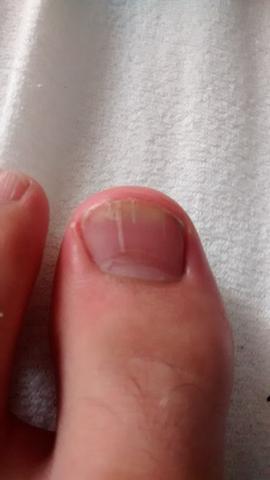 mein fuß nagel - (Gesundheit, Füße)