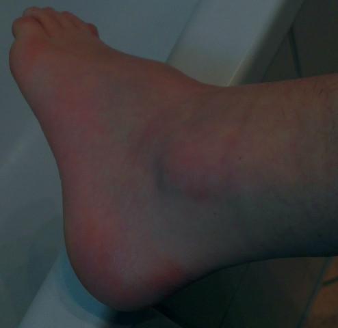 Fuß umgeknickt blau