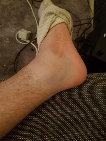 Fuß umgeknickt dicker knöchel