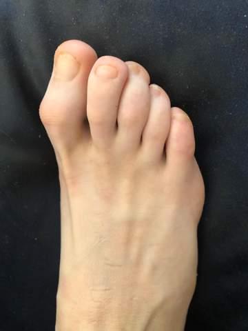 Fußfehlstellung?