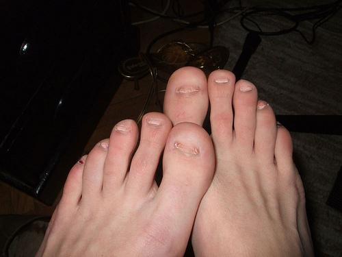Fußnägel Wachsen Nach Unten
