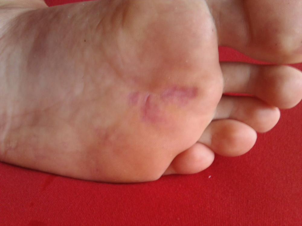 Fußpilz Bilder