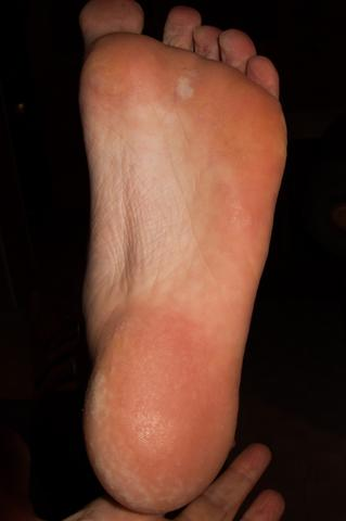 Hornhaut Fußsohle