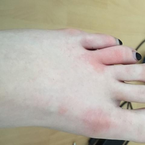 Fußschmerzen/Rötungen was tun?