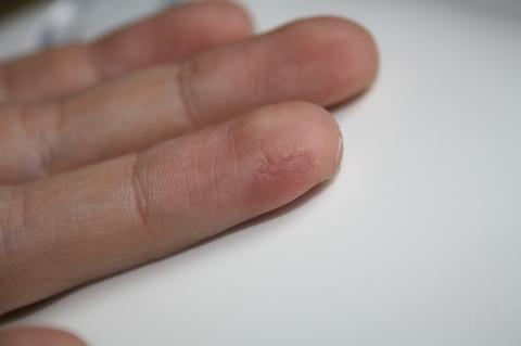 Trockene Haut an der Vagina nach Sex -