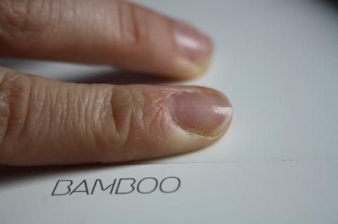 Finger 3 - (Finger, trockene Haut, rissige Haut)