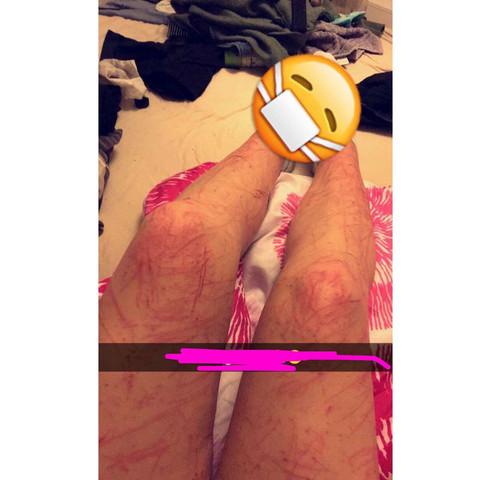 In diesem Zustand sind meine Beine 😑 - (Beine, Kratzer)