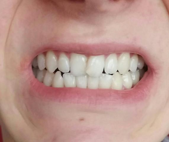 Zähne nach Bleaching - (Zähne, Bleaching)