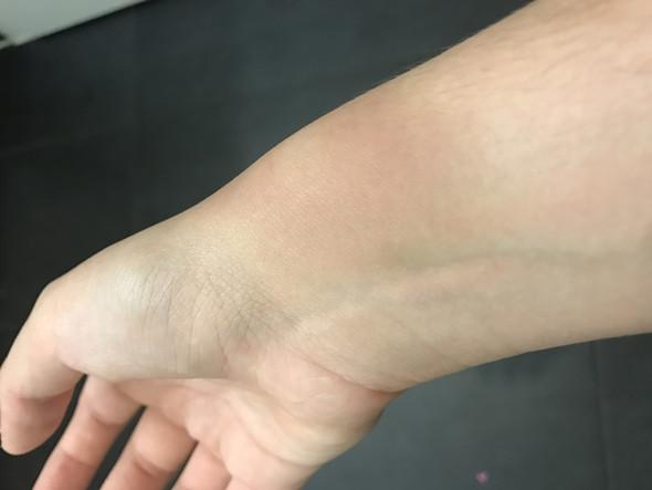 Bild 2 - (Gesundheit, Schmerzen, rechte Hand)