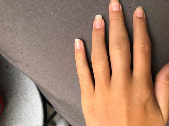 Finger verstaucht wie lange geschwollen