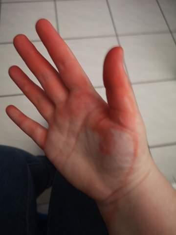 Gefärbte Hände?