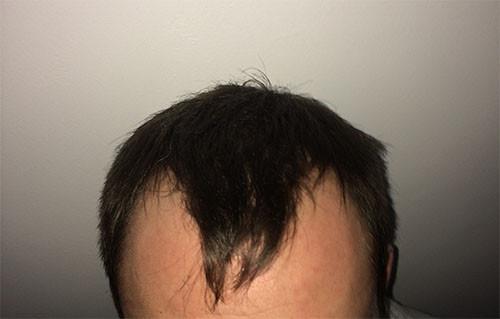 Vor der OP - (Haare, Türkei, haartransplantation)
