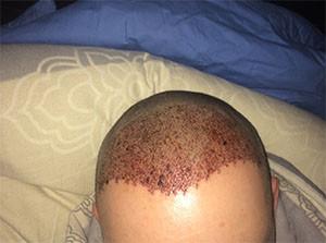 Nach der OP - (Haare, Türkei, haartransplantation)