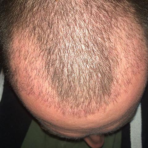 1 Monat nach der OP - (Haare, Türkei, haartransplantation)