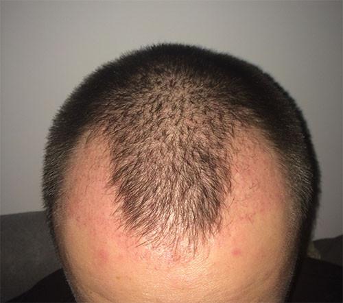2 1/2 Monate nach der OP - (Haare, Türkei, haartransplantation)