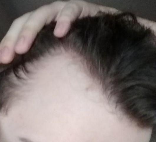 Geheimratsecken leichte Haartransplantationkosten