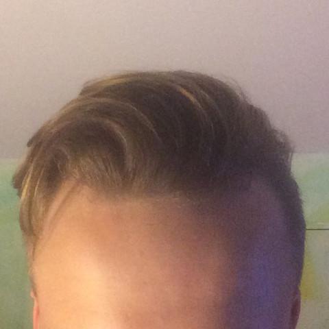 So ungefähr liegen meine Haare normal - (Haare, Angst, Frisur)