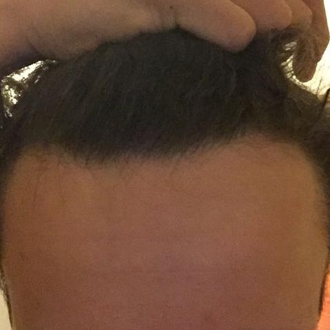 Mit 17 geheimratsecken Kurze Haare