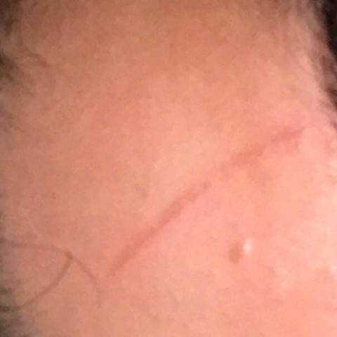Wunde an der Stirn  - (Medizin, Arzt, Fußball)