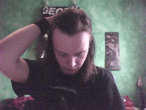 - (Haarausfall, geheimratsecken)