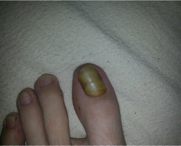 Linker Zehnagel - (Krankheit, Füße, Pilze)