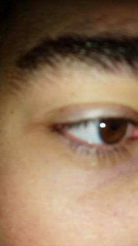 - (Augen, krank, gelb)