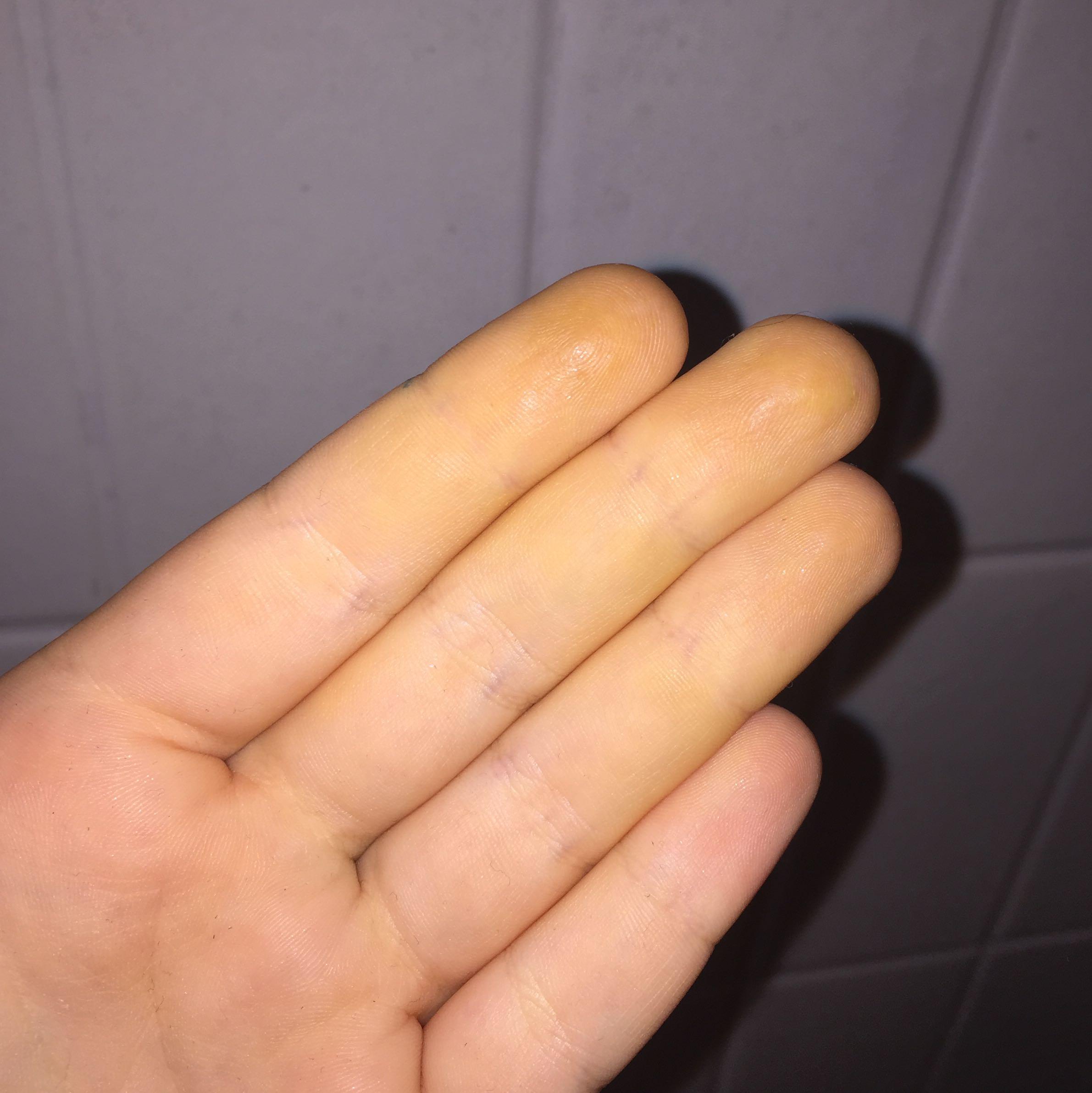 Gelbe Finger innen? (Gesundheit, gelb, Orthomol)