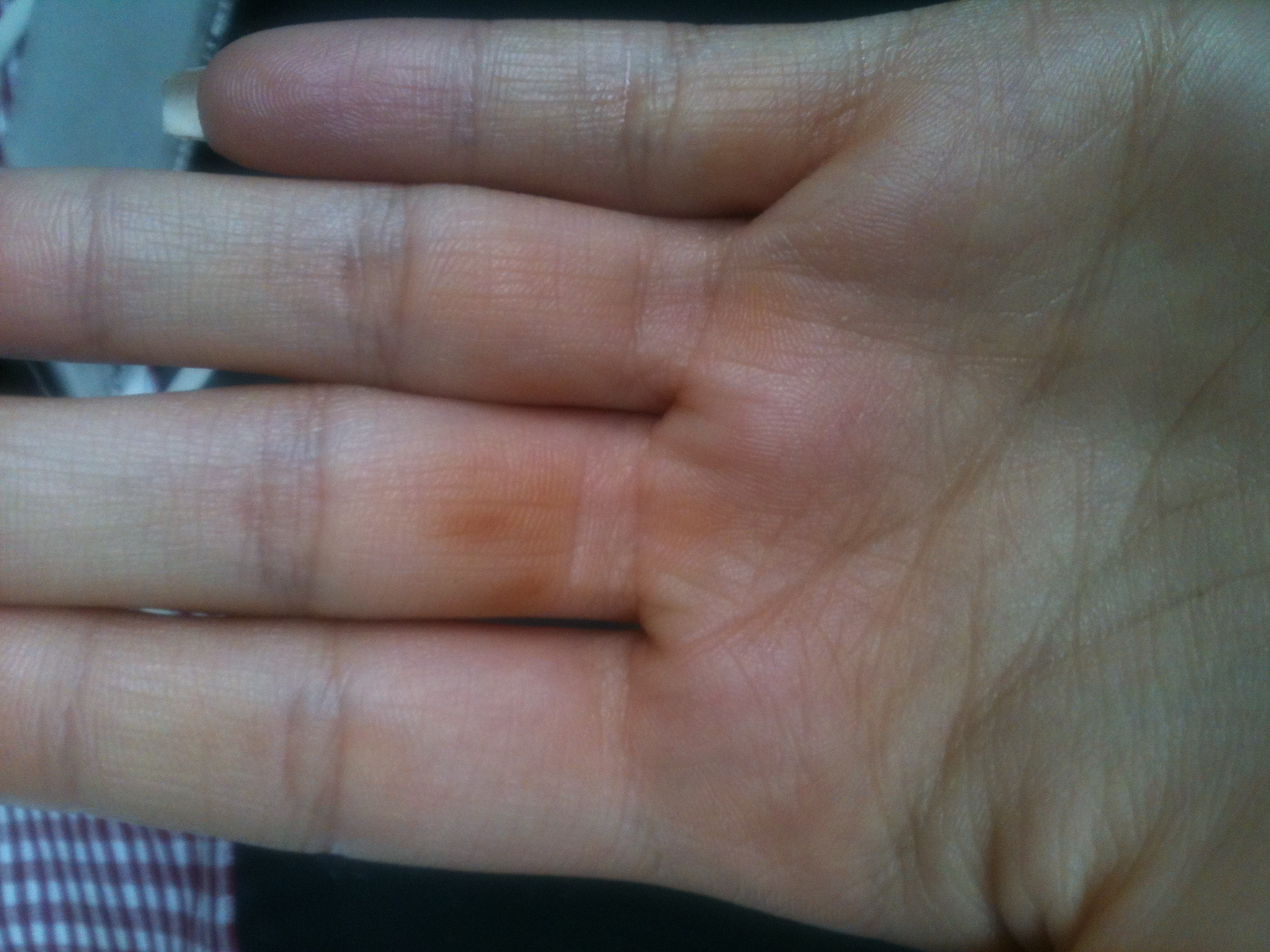 Braune flecken am finger