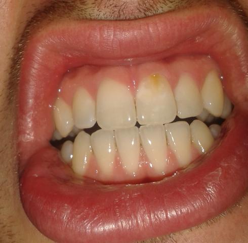 Bild gelbe Zähne - (Abbau, zahnschmelz, gelbe Zähne)