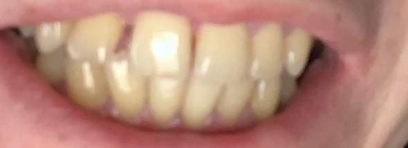 Gelbe Zähne Wieder Weiß Putzen