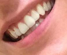 Gelbe Zähne was denkt ihr?