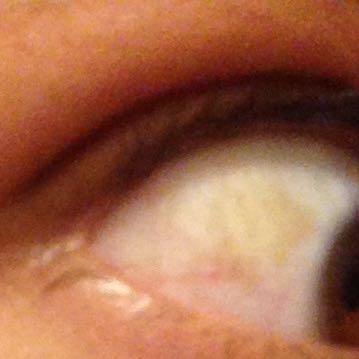 Auge 1 - (Gesundheit, Körper, Augen)