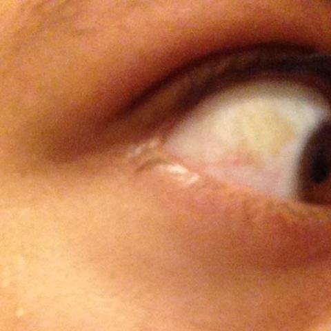 Gelben Fleck Am Auge Was Ist Das Mit Bild Gesundheit Körper