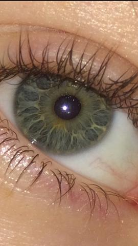 Auge - (Flecken, gelb)