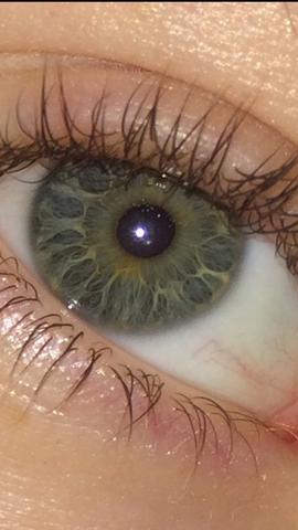Gelber Fleck Auf Iris Flecken Gelb